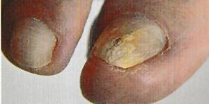 Abbildung Nagelpilz